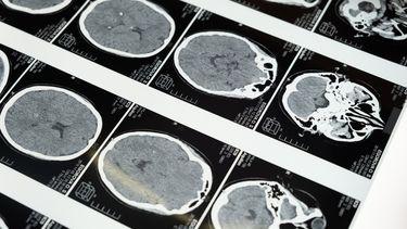 hersenen grijze massa onderzoek