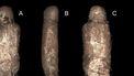 Mummie onderzoek